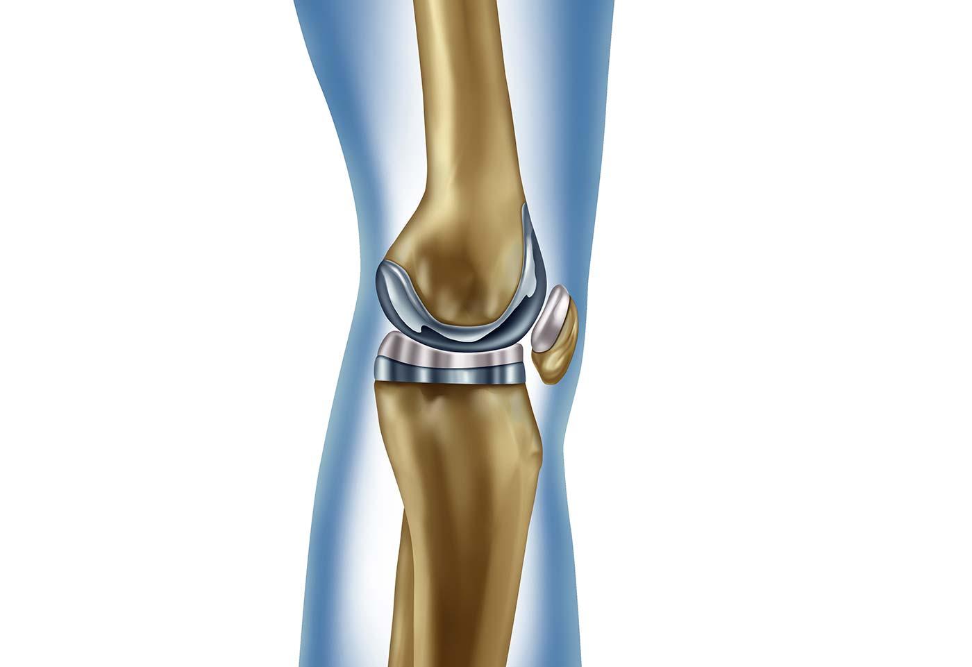 Image de l'actualité : Qu'est ce qu'une prothèse de genou