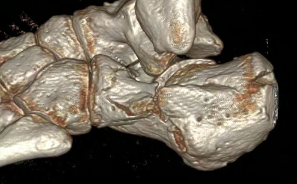 Image de l'actualité : Actualités en chirurgie du pied et de la cheville : traitement chirurgical novateur des fractures du calcanéum